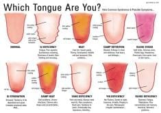 What Can Tongue Analysis Tell You About Your Health?