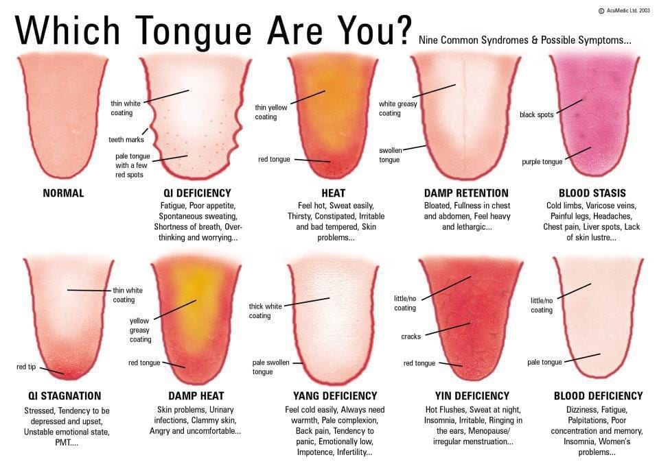 Which-Tongue-Are-You