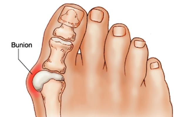 How To Get Rid Of Bunions On The Feet And Joint Pain