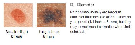 meloma4