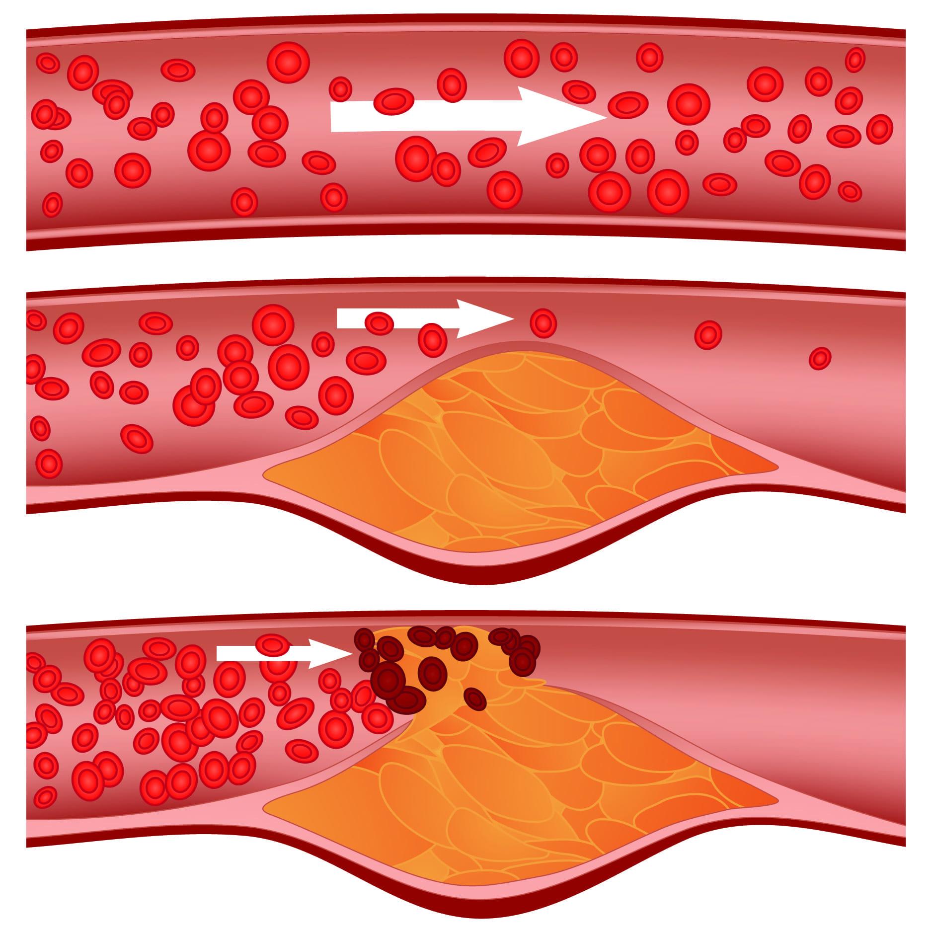 pillen voor cholesterol
