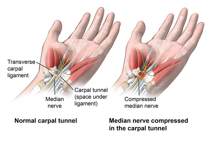 an in depth look at the causes of carpal tunnel syndrome cts