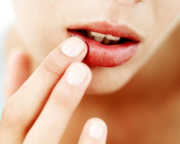 How to Get Rid Of Herpes Overnight With One Simple Trick!