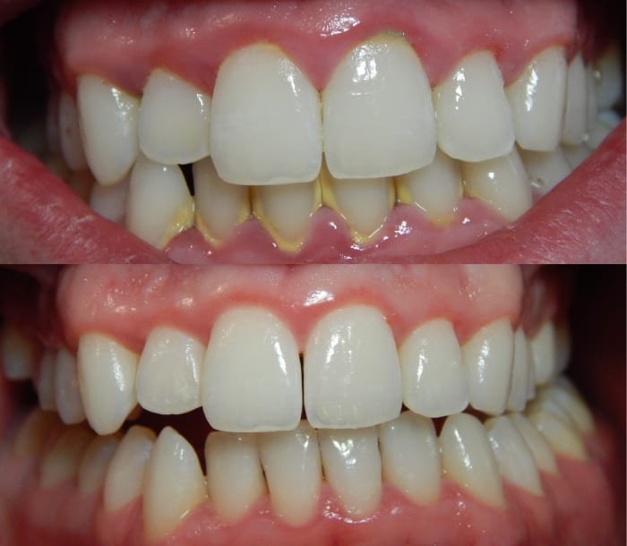 Chew on This Root to Melt Away Plaque and Prevent Cavities