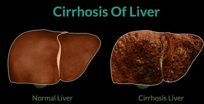 The Most Effective Home Cures for Cirrhosis of the Liver