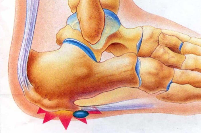 Plantar Fasciitis or Jogger's Heel. How to Get Rid of The Pain in The Heel