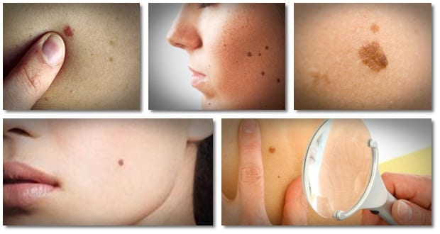 Home Remedies For Tag Warts