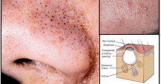 Apply These 7 Natural Remedies To Remove Blackheads That Take 15 Minutes or Less