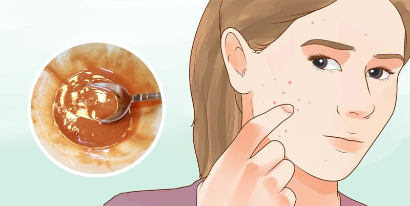 4 Ingredient Face Mask to Magically Remove Acne Scars, Wrinkles and Reverse Aging