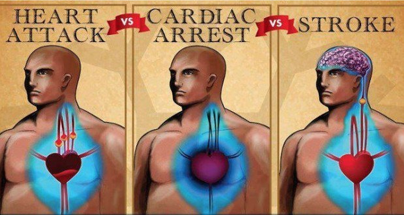 Knowing The Life Saving Differences Between Cardiac Arrest, Heart Attack And Stroke