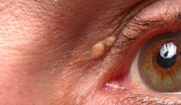 Kelopak mata Anda dapat menunjukkan Gejala Awal Serangan Jantung