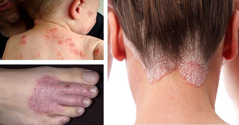 12 Natural Remedies For Eczema, Rashes and a Range of Persistent Skin Conditions