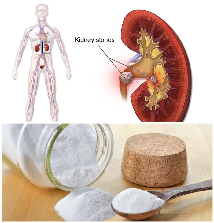 28 Manfaat Baking Soda untuk Kulit – Wajah – Kesehatan
