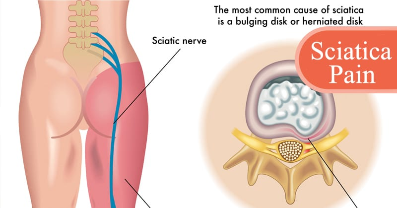 5 Simplest Magical Pain Removing Methods If You're Suffering from Sciatica Pain