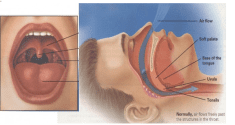 Eliminate Snoring Using These 6 Simple Yet Effective Exercises