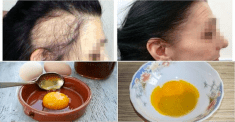 A Magic Recipe For The Fastest Hair Growth! You Only Need 3 Ingredients!