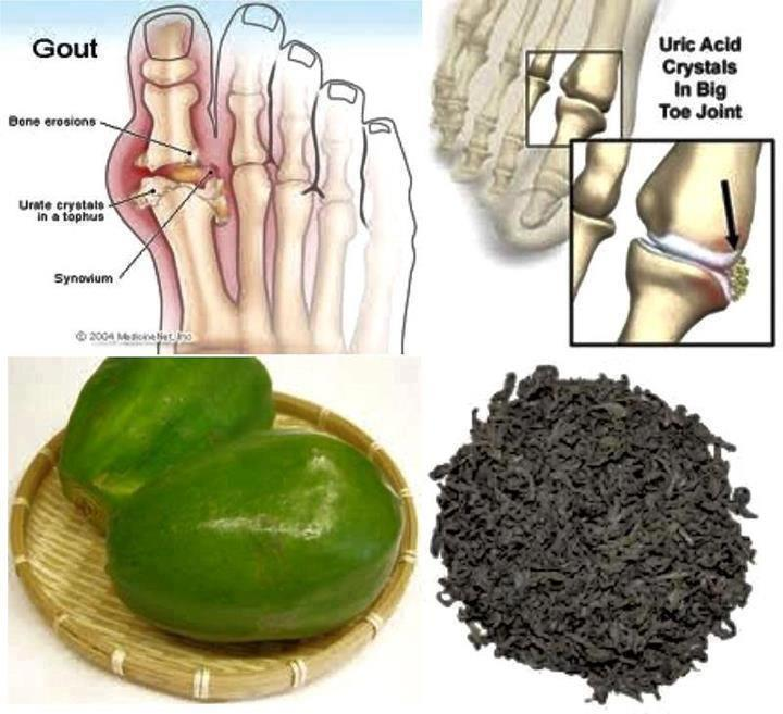 Use Papaya for Uric Acid Problem!