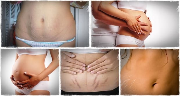 8 Natural Remedies to Remove Pregnancy Stretch Marks