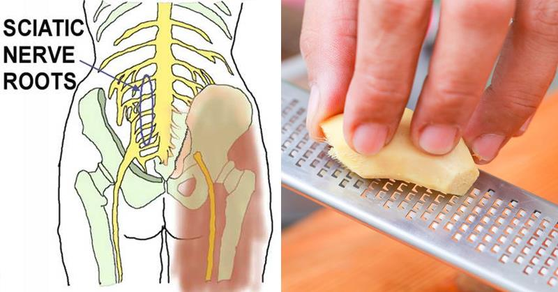 Treat The Sciatic Nerve Pain With These Herbs, It's Unbelievably Successful