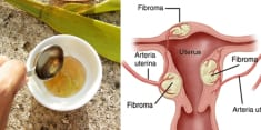 How I Treated Tumor Of The Uterus: A Woman (56) Reveals The Powerful Drug Made Of Three Ingredients!