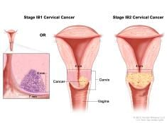 NEED to KNOW: 7 Signs Of Cervical Cancer That Women Need To Observe