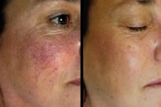 How To Treat Cracked Capillaries And Redness On The Face?