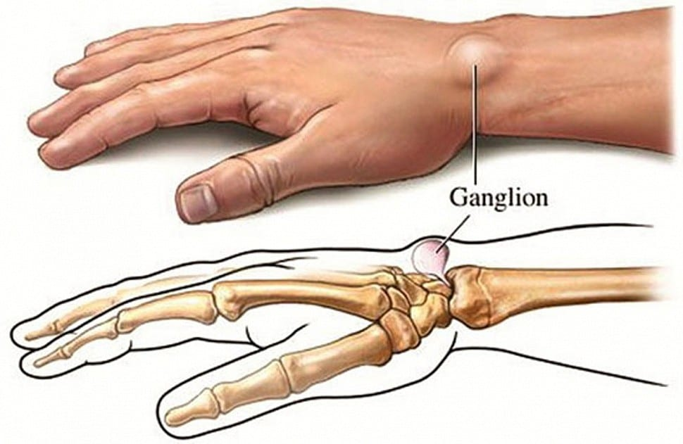 5 Natural Home Remedies For Ganglion Cysts!