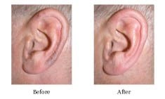 3 Easy Remedies To Get Rid Of Ear Hair Today