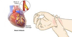 80% Of Heart Attacks Could Be Avoided If Everyone Did These 5 Easy Things