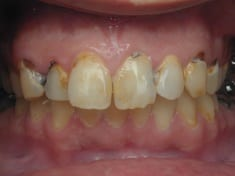 6 Advices To Help You Prevent Cavities And Make You Forget About Dentists