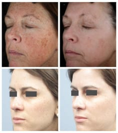 How To Remove Pigmented Spots On The Face Using A Natural Balm
