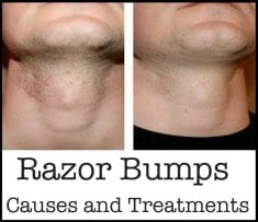 Razor Bumps, Causes and Treatments