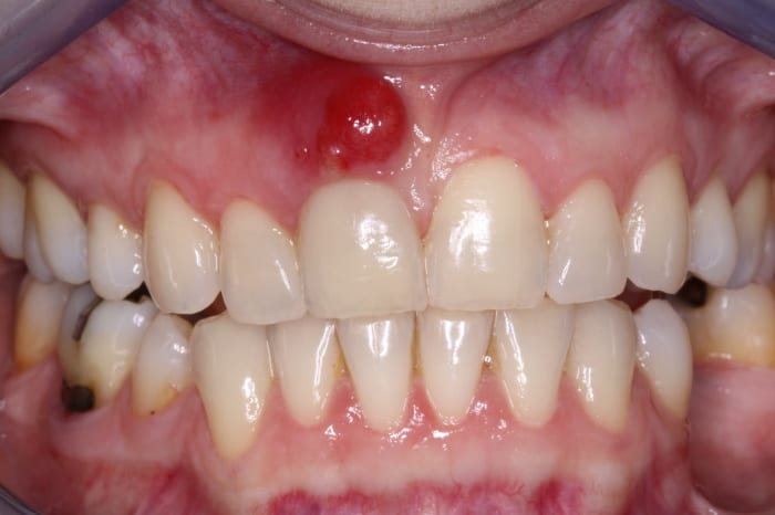 11 Home Remedies for Abscessed Tooth