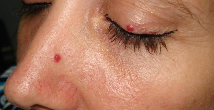Cherry Angioma: Definition, Causes & Home Remedies