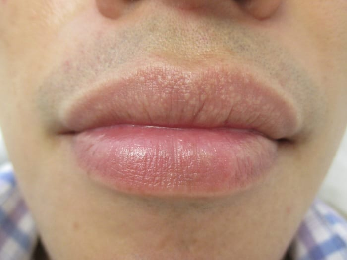 11 Tips to Prevent and Treat Fordyce Spots on Lips