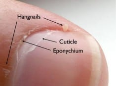 10 Home Remedies for Hangnail