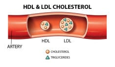 How to Clean your Blood from Fat and Eliminate Bad Cholesterol? – (Recipe)