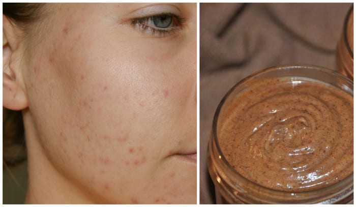 Get Rid Of Pimples Fast With This Simple Remedy