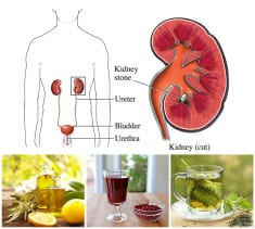 8 Natural Remedies For Kidney Stones