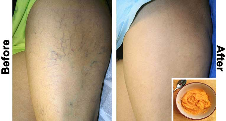 The Most Effective Natural Treatment for Varicose Veins!