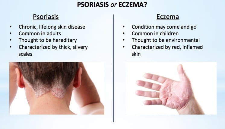 How to Tell If You Have Eczema or Psoriasis (and how to get rid of both)