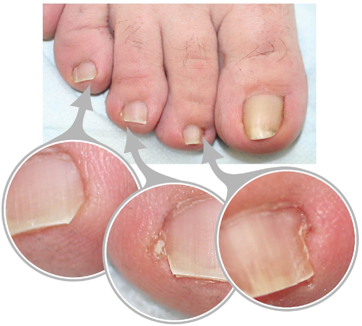 Болят большие пальцы на ногах возле ногтя