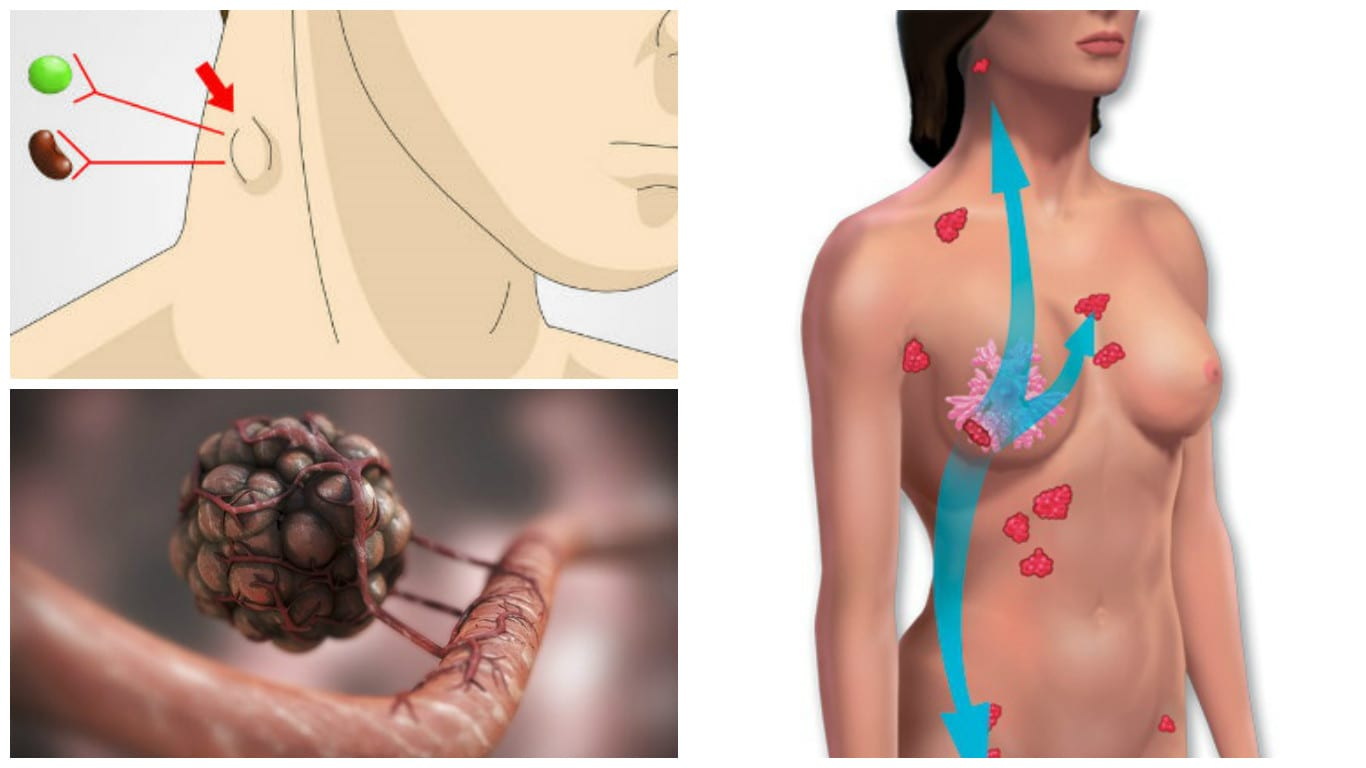 How Cancer Spreads Through The Lymphatic System (And How To Keep It Healthy)