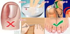 Here's How To Get Rid Of Ingrown Toenail Without Surgery