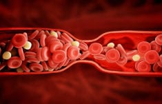 All You need To Know About Blood Clots and How To Prevent Them