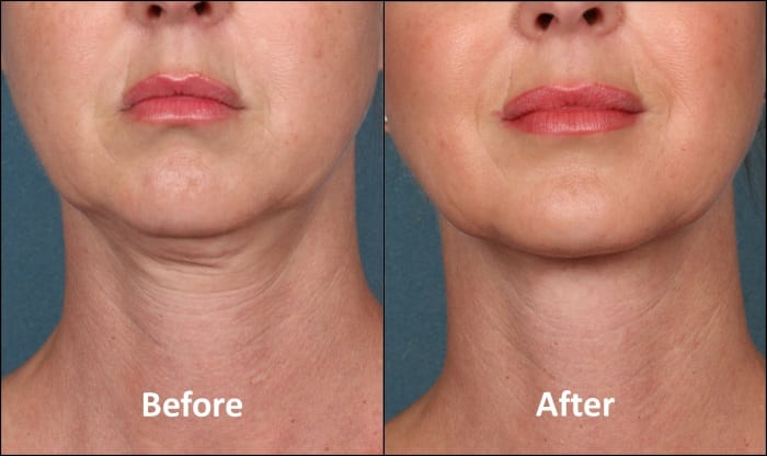 7 Natural ways to help tighten a sagging double chin