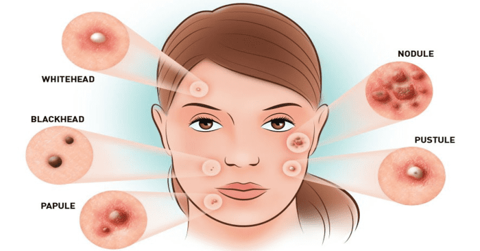 12 Natural Tips To Reduce Hormonal Acne Breakout