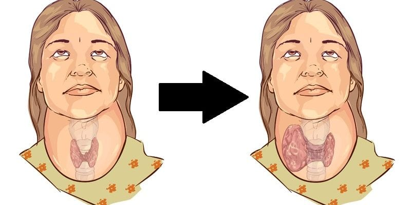 5 Bad Habits That Make Thyroid Problems Worse