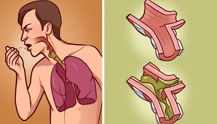 When Your Lungs Drown in Mucus, This is The Best Cure! It's 100% Natural and Works in Just Few h ...
