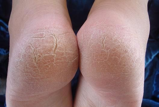 Do you have callouses on the hands and feet? You may have cancer in this surprising place